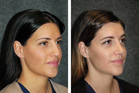 Kết quả hình ảnh cho ultrasonic nose jobs