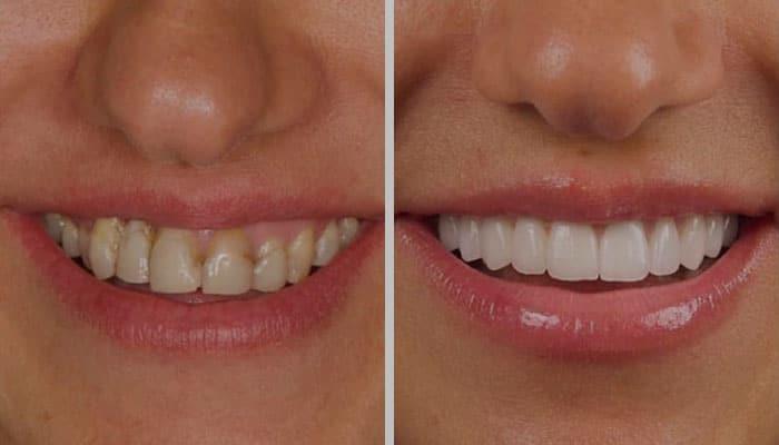 تبييض الاسنان عبر ابتسامة هوليوود
