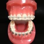 Clear-Ceramic-Braces-cropped-150x150.jpg