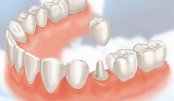 Mài răng hô bọc sứ răng hết hô - thẩm mỹ tối đa 1