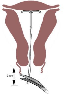 Trimming the IUD strings to 3-4 cm.
