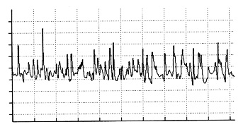 Partial interference pattern in a cat semitendinosus muscle as a result of volitional flexion of the stifle joint