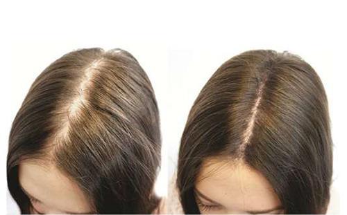 Description: Kết quả hình ảnh cho hiệu quả mọc tóc