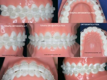 SDB - Terapia ortodontica fissa web.jpg
