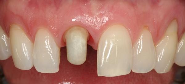 Bọc răng sứ cho răng hô khi nào nên sử dụng để có kết quả? 1