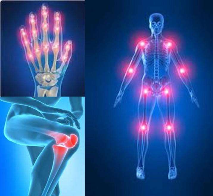 artritis-rematoide-715x656.jpg