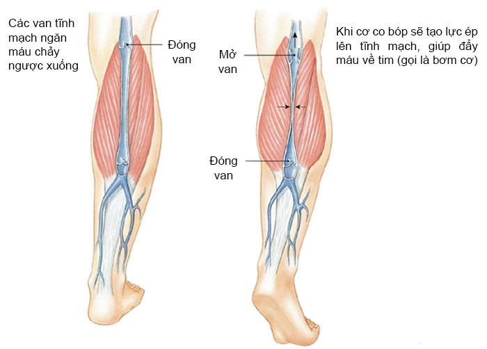 Bệnh suy giãn tĩnh mạch chân là gì