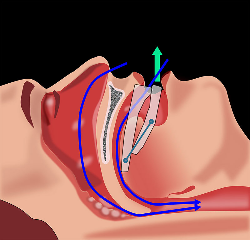 Sleep Apnea - Everything to Know About How to Get Screened and Treated 2