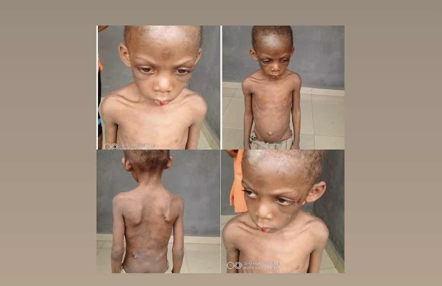 4 Years old boy suffers maltreatment  from his parents coupled with malnourishment.