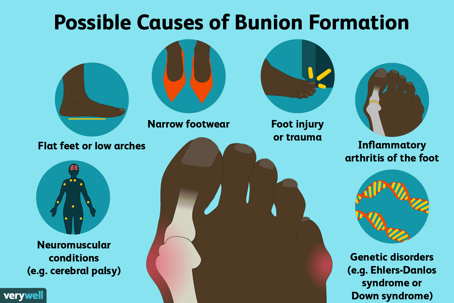 Bunions: Symptoms, Causes, Diagnosis, and Treatment