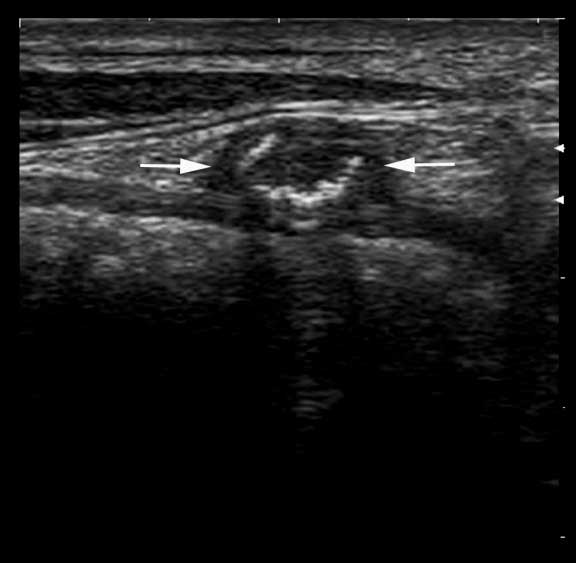 Abnormal umbilical vein showing hyperechoic luminal contents in a foal with omphalophlebitis