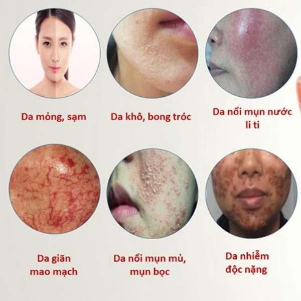 Các biểu hiện của da nhiễm Corticoid.