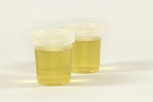 Test, A Container For Urine, Urine