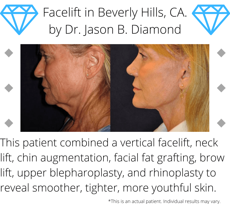 Before and after image of a facelift performed in Beverly Hills, CA.