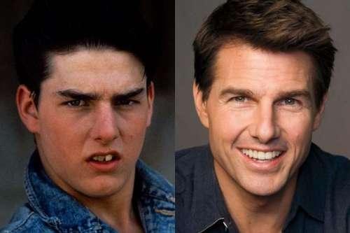 13 antes e depois de famosos que provam que ninguém é feio, só é pobre mesmo - Dica da Semana