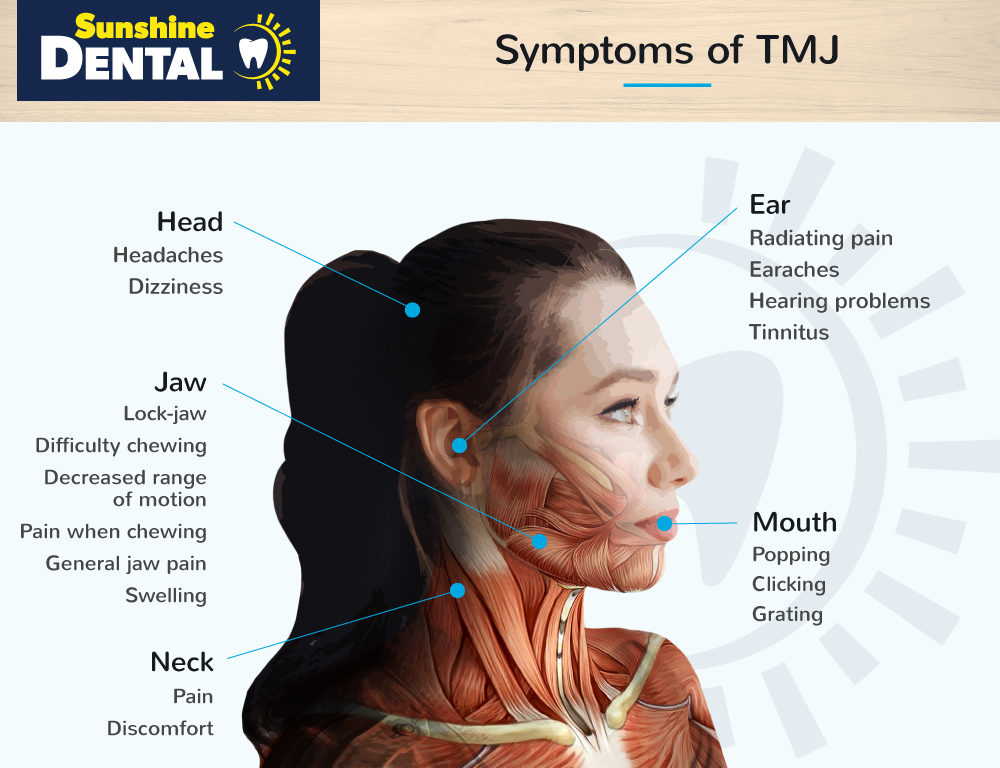 Diagram explaining the parts of the body where you feel TMD symptoms