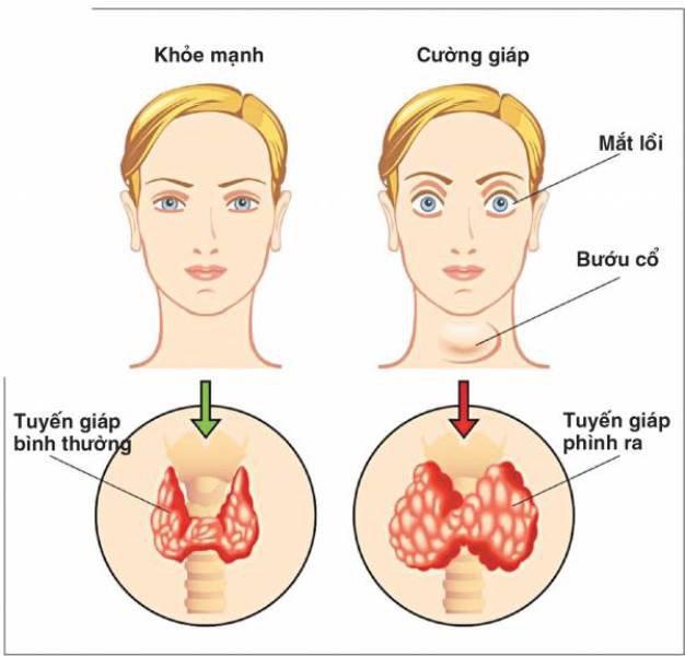 Bướu cổ, mắt lồi là triệu chứng điển hình bệnh cường giáp