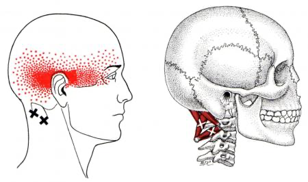 suboccipital pressure points for headaches