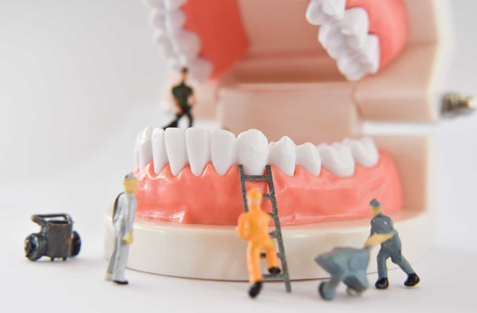 miniature toy workers climbing over and maintaining dentures