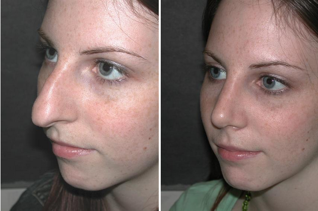 Before and after picture of rhinoplasty procedure