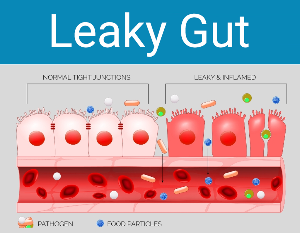 How to heal leaky gut: Illustration of normal and leaky and inflamed junctions
