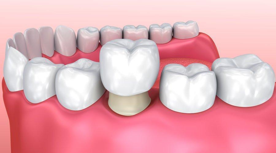 Resultado de imagen de corona fijo dental