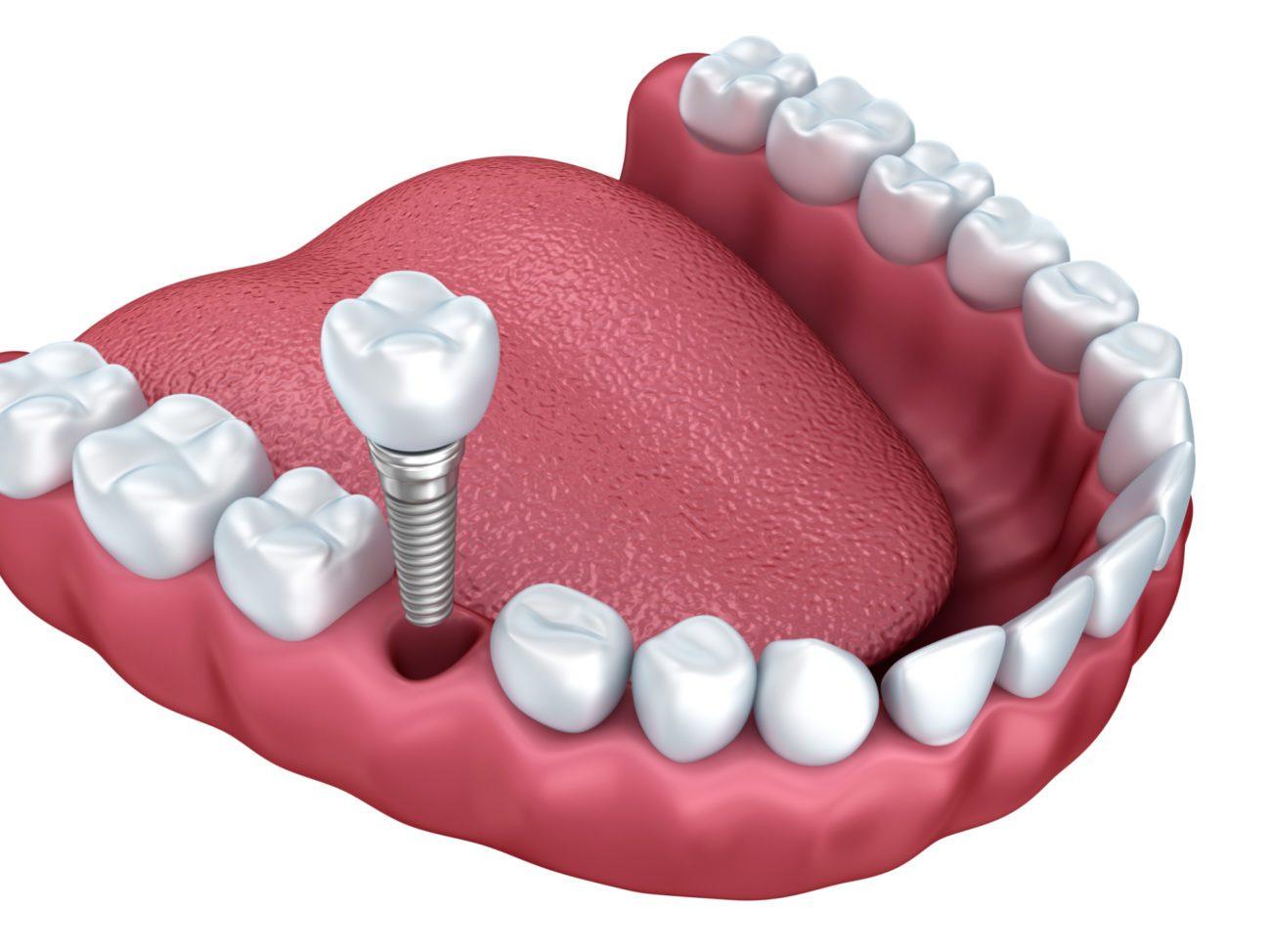 Cấy ghép implant mất bao lâu? Trung tâm implant công nghệ cao