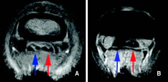 (A) T1-weighted and (B) STIR transverse images of a foot at the level of the second phalanx acquired using a Hallmarq distal limb scanner (0.27 T).