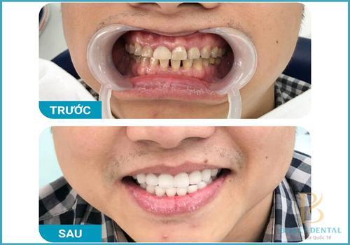 Trám răng cửa thưa được thực hiện như nào? 1