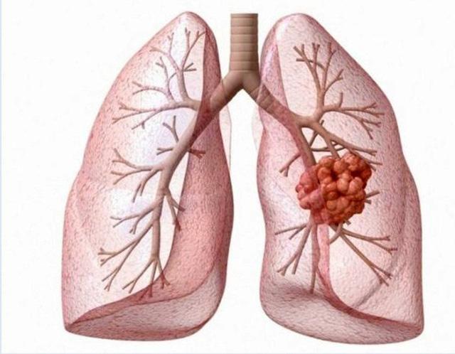 Bệnh ung thư phổi có mấy loại, mấy giai đoạn? - Ảnh 1