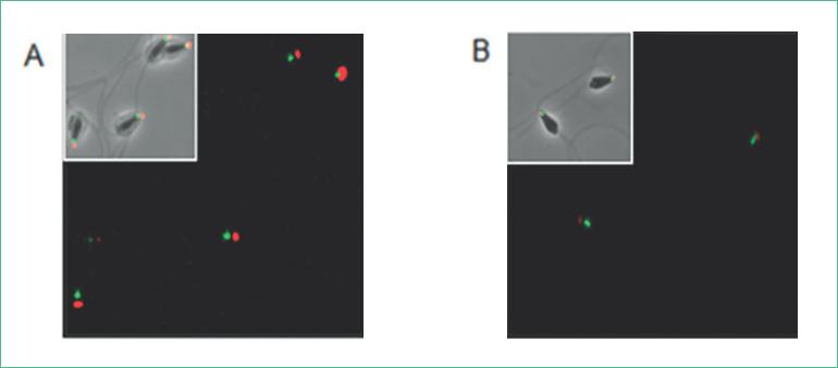La ACm1 localizada en el área del acrosoma del eem disminuye con la reacción acrosomal.
