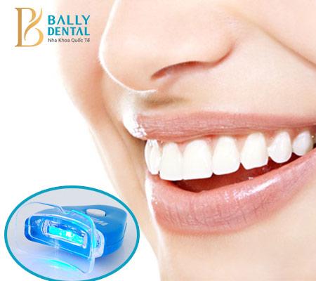 Trẻ em dưới 16 tuổi tại sao không nên tẩy trắng răng?