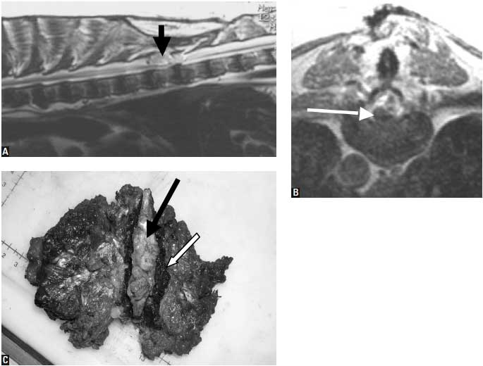 Extradural compression: T9 chondrosarcoma in an 11-year-old MC bloodhound with acute deterioration of chronic paraparesis