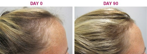 Hair Loss Before And After Pictures