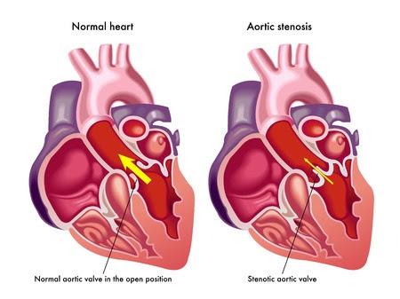 aortic_stenosis