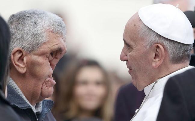 Ο πάπας Φραγκίσκος αγκάλιασε έναν άνδρα χωρίς πρόσωπο (Προσοχή σκληρές εικόνες) - Φωτογραφία 2