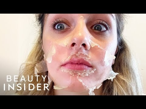 What It's Like To Get A Chemical Peel For Acne Scars | Beauty Explorers