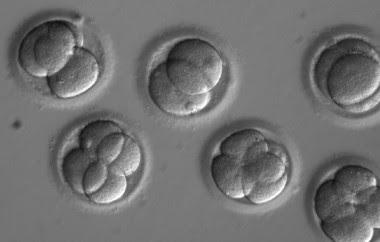 <p>Embriones dos días después de la coinyección de los componentes CRISPR con elesperma del donante. / OHSU</p>