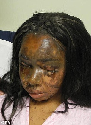 Jealous Mary Konye gets 12years in Prison for pouring acid on Nigeria Miss Oni's face .