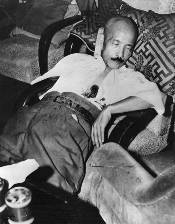 General Hideki Tojo after trying to commit suicide and failing.September 8,1945