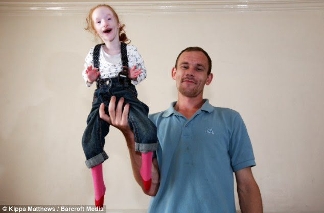 Tiny: Charlotte weighed less than 2lbs at birth, measured 25cm and had to be dressed in dolls' clothes