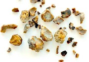 Are Kidney Stones Genetic? Learn How You Ended Up With Stones