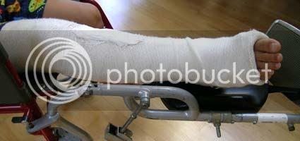 K*'s Broken Leg