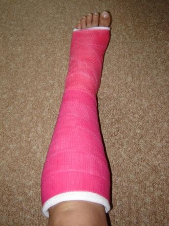 My Achilles Heelliterally Stuffconz