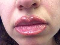 Lip liner tattoo healing time 0 3
