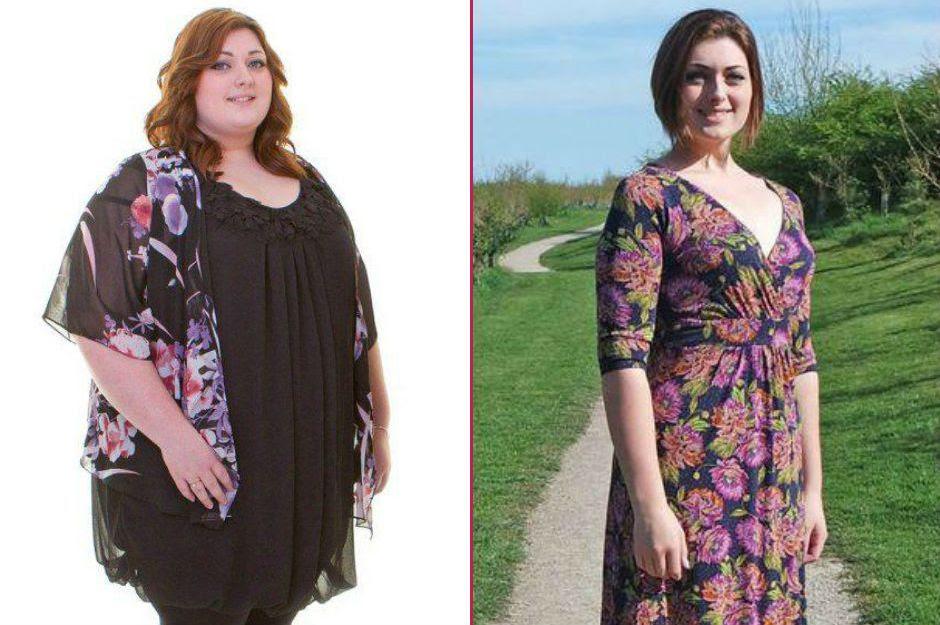 Yolda Yürürken Yüzüne Kebap Atılınca Tam 63 Kilo Veren Genç Kadın