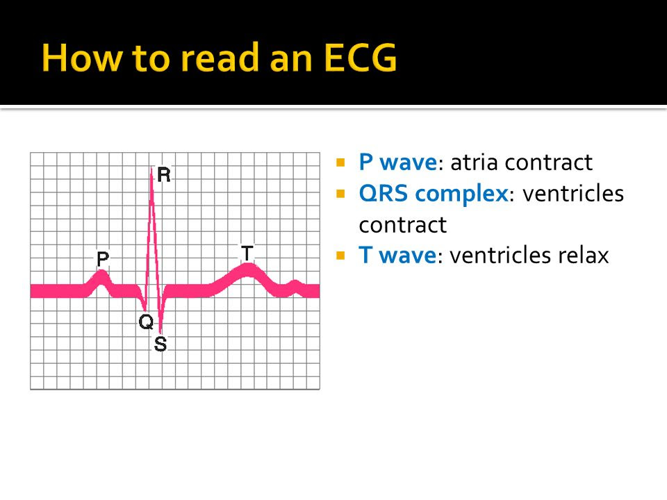 How+to+read+an+ECG+P+wave%3A+atria+contract