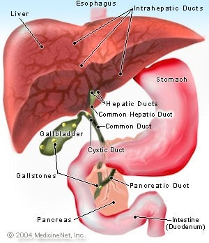 Gallbladder Stone & Homoeopathy: GALLSTONE AND HOMOEOPATHY
