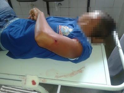 Aluno foi baleado no braço esquerdo (Foto: Ubatã Notícias)