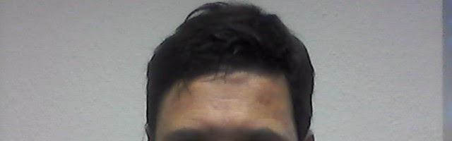 Toupet Haarteile Zweithaar Frisuren Männer Bilder Und Beispiele